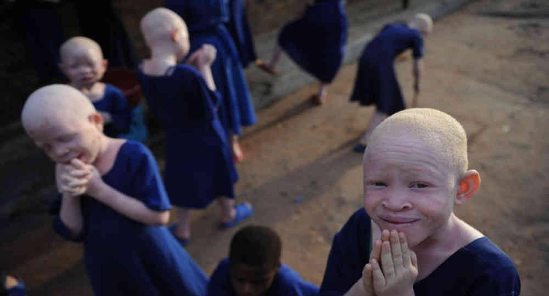 Campamento de acogida de niños albinos. Foto: AFP.